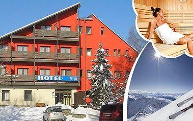 Zimní radovánky pro 2 osoby na 3 dny v hotelu Na Trojce v Jeseníkách!! Čeká na vás polopenze, sauna, neomezeně teplé nápoje a slevy na skipas a masáže!! Upravené běžecké tratě, skiareály nebo sáňkování v pohádkové krajině!!