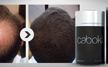 Padají a řídnou vám vlasy? Revoluční přípravek Caboki je řešením!