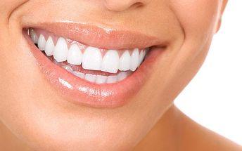 Dentální hygiena a neperoxidové bělení chrupu
