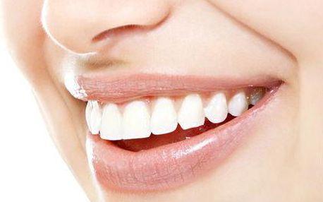 Rekonstrukce zubu: estetická faseta z kompozitu