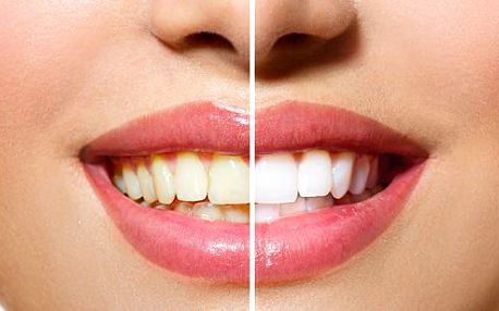 Bělení zubů francouzským gelem s nanočásticemi stříbra - Zářivý úsměv ve stylu hollywoodských celebrit