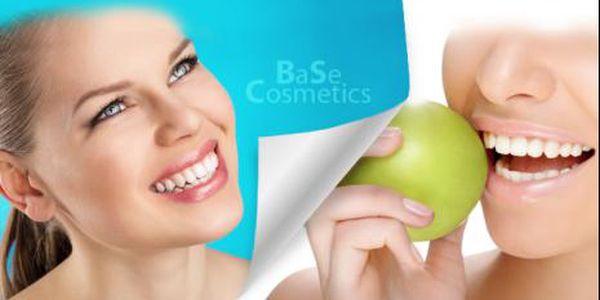60minutové BĚLENÍ ZUBŮ PLAZMOVOU LAMPOU! Účinný bezperoxidový způsob bělení pro krásný úsměv!