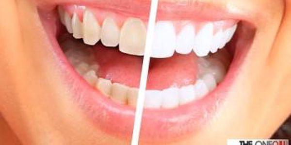 NEPEROXIDOVÉ BĚLENÍ ZUBŮ modrým laserem bez poškození skloviny. 40 minut + 40 minut ZDARMA.