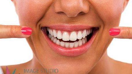 Zářivý chrup bez peroxidu: Oxygen Teeth Whitening + mineralizace