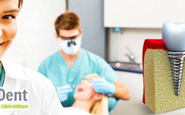 Kvalitní zubní implantáty: profesionální zákrok na zubní klinice SG Dent!