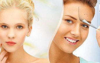 Odstranění akné na obličeji nebo dekoltu (zad) včetně masky