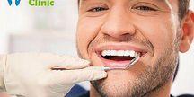 Dentální hygiena Dental Esthetic Clinic