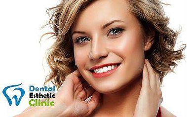 Maximálně odolná bílá plomba v Dental & Esthetic Clinic
