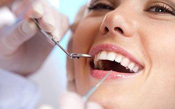 Profesionální zubní hygiena s AirFlow od 699 Kč!