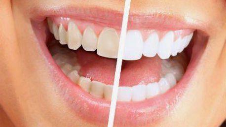 Bělení zubů gelem bez peroxidu: 30 minut