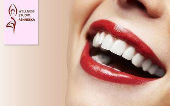 Bělení zubů bez peroxidu