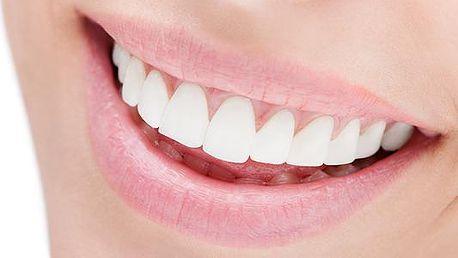30minutové bělení zubů neperoxidovým gelem White power - 30minutové bělení zubů neperoxidovým gelem White power v Brně