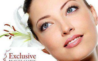 Odstranění žilek v obličeji T-Away se slevou 72 %