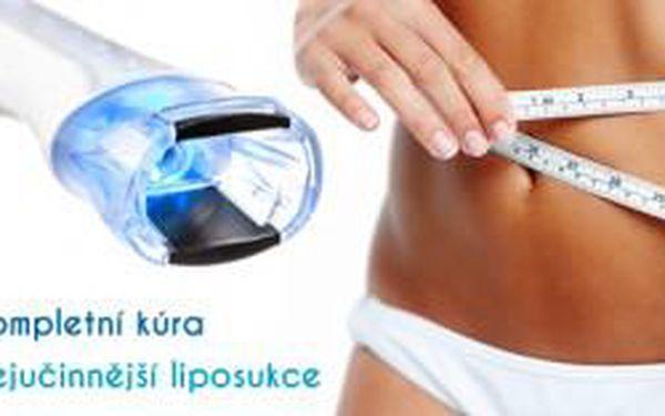 3x nejúčinnější bezbolestná liposukce - ošetření, ...