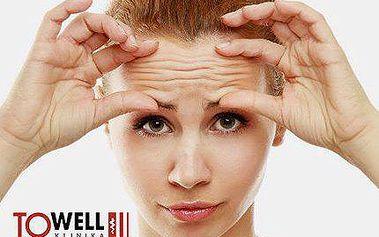 Nejnovější UltheraLIFT na celý obličej, krk a dekolt! Efekt dle studie až 5 let!