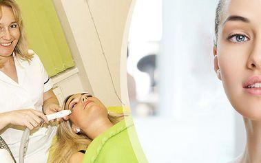 PreFacing - kompletní laserové ošetření pleti bez chirurgického zákroku. Metoda vyhlazení vrásek.