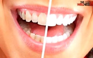 Účinné NEPEROXIDOVÉ BĚLENÍ ZUBŮ včetně MINERALIZACE zubní skloviny. 40 minut + 40 minut.