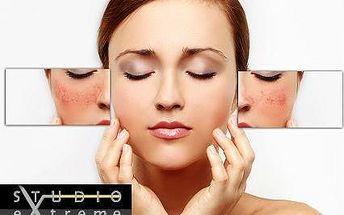 Vymaže všechny kosmetické nedostatky: německá novinka Onetec®
