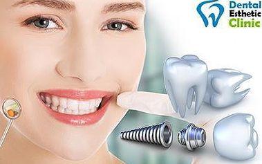 Dental Esthetic Clinic: Zubní implantát Dentis s metalokeramickou korunkou
