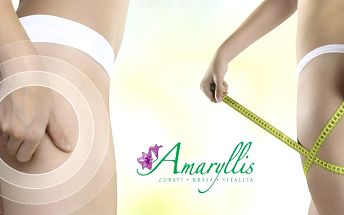 Balíček účinných procedur proti celulitidě v AMARYLLIS BEAUTY INSTITUT Jihlava.