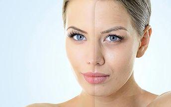 Ošetření Blu laserem - hubnutí nebo lifting
