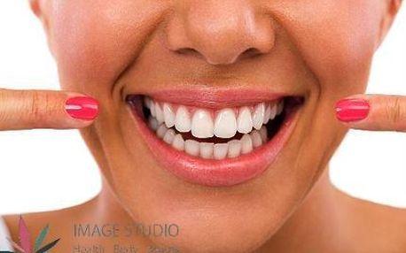 Zářivý chrup bez peroxidu: Bělení zubů Oxygen Teeth Whitening s mineralizací