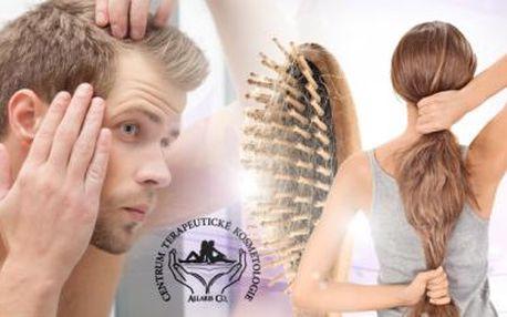 MEZOTERAPIE - LÉČBA NA VYPADÁVÁNÍ VLASŮ! Napomáhá obnovení vlasového kořínku, který vyživuje!