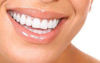 Bělení zubů v Praze pomocí plazmové lampy
