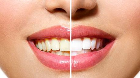 Bělení zubů francouzským gelem s nanočásticemi stříbra