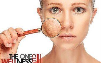 Odstranění žilek nebo pigmentových skvrn: 3× kompletní ošetření