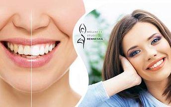Šetrné BĚLENÍ ZUBŮ neperoxidovým gelem WHITE power! Bělejší zuby až o 6 odstínů již po prvním ošetření!