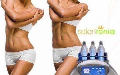 Nejúčinnější neinvazivní liposukce Blue Laser Energy Wave