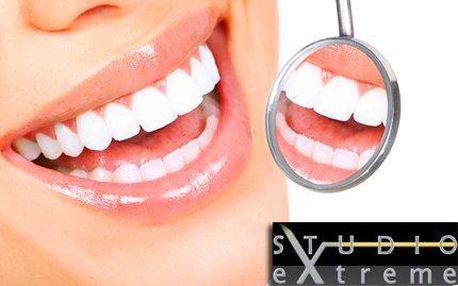 Studio eXtreme Praha: Neperoxidové bělení Smile Brilliant se slevou 92 %