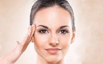 Vyžehlení vrásek pomocí Exilis Face a regenerace pokožky