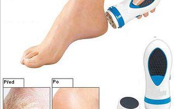 Elektrický odstraňovač ztvrdlé kůže