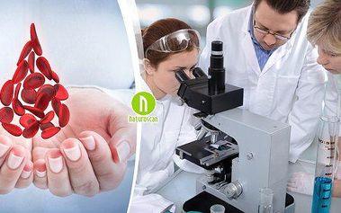 Vyšetření kapky krve pro odhalení zdravotního stavu + F-Scan na přítomnost parazitů. Nahlédněte do vlastní krve a odhalte skryté problémy dříve, než se objeví první problémy! Chraňte si své zdraví, vyzkoušejte kompletní analýzu včetně frekvenčního screeni