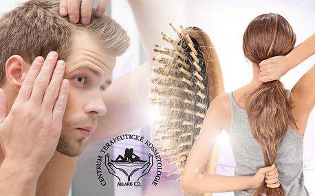 Mezoterapie - léčba proti vypadávání vlasů, vráskám, pigmentaci, žilkám, akné, povislé pokožce a celulitidě!