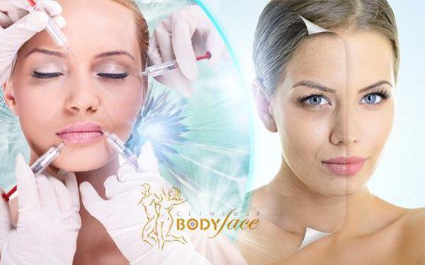 Kyselina hyaluronová injekčně přímo do vrásek! Zastavte stárnutí s pomocí zkušených zdravotníků!