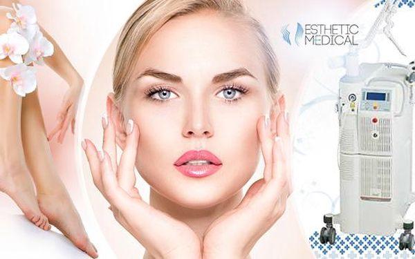Frakční laserové ošetření žilek na nohou nebo obličeji v klinice Esthetic Medical v Praze!