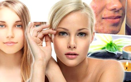 Dermatologický a estetický laser Biostimul - odstranění akné, pupínků, jizviček a černých teček. Trápí vás akné? Intenzivní léčebná kúra zahrnující 5 ošetření fotochemicky odstraní akné a zvýší vám sebevědomí! Pupínky, jizvičky po akné nebo černé tečky. T