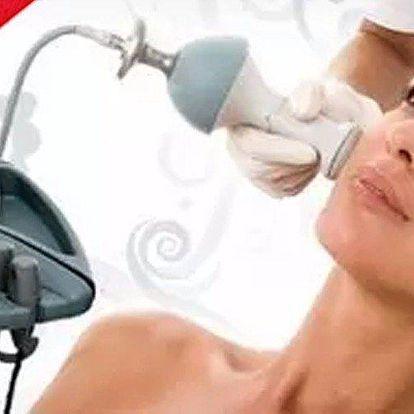 60 minutový nechirurgický lifting