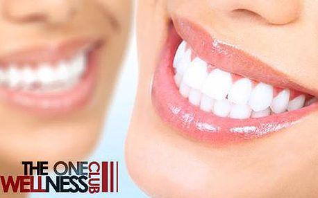 40minutové neperoxidové bělení zubů