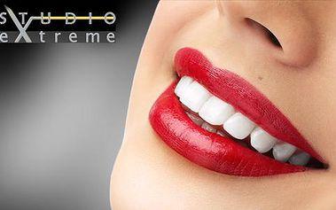 Bezperoxidové ordinační bělení zubů laserem