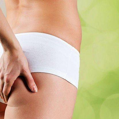 Neinvazivní liposukce + přístrojová lymfodrenáž