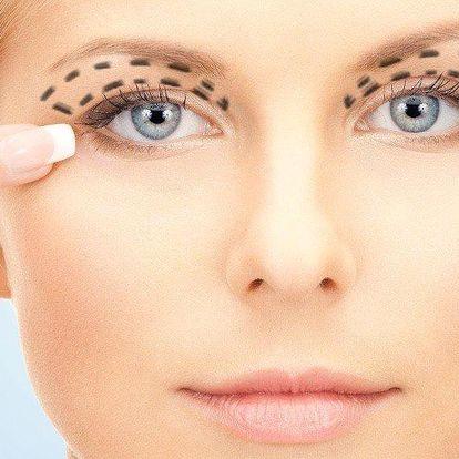 Plastická operace horních očních víček