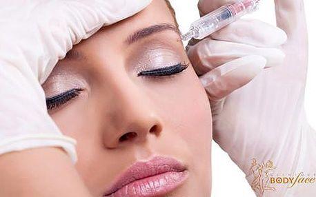 Injekční odstranění vrásek aplikací přírodního botoxu