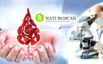 Analýza zdravotního stavu z kapky krve a odborná konzultace! Odhalte nemoci i parazity za 90 minut!