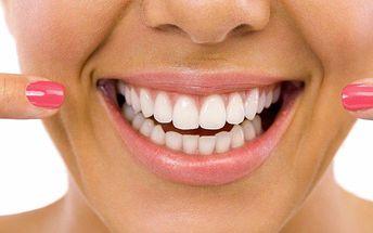 Šetrné bělení zubů