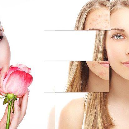 Neinvazivní metoda - chemický peeling 60 minutová kůra. Zlepšení vzhledu se 100% výsledkem!!