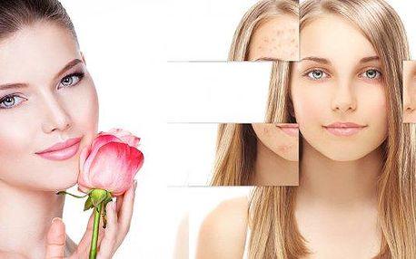 Chemický peeling je neinvazivní metoda, slouží k projasnění a omlazení stárnoucí pleti, vyhlazení jemných vrásek, zjemnění jizev po akné a rozšířených pórů a odstranění pigmentových skvrn. Vhodný pro všechny, kdo očekávají rychlé zlepšení vzhledu pleti se